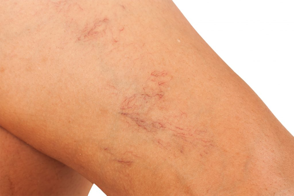 close-up of woman's leg prior to receiving vein therapy - sclerotherapy