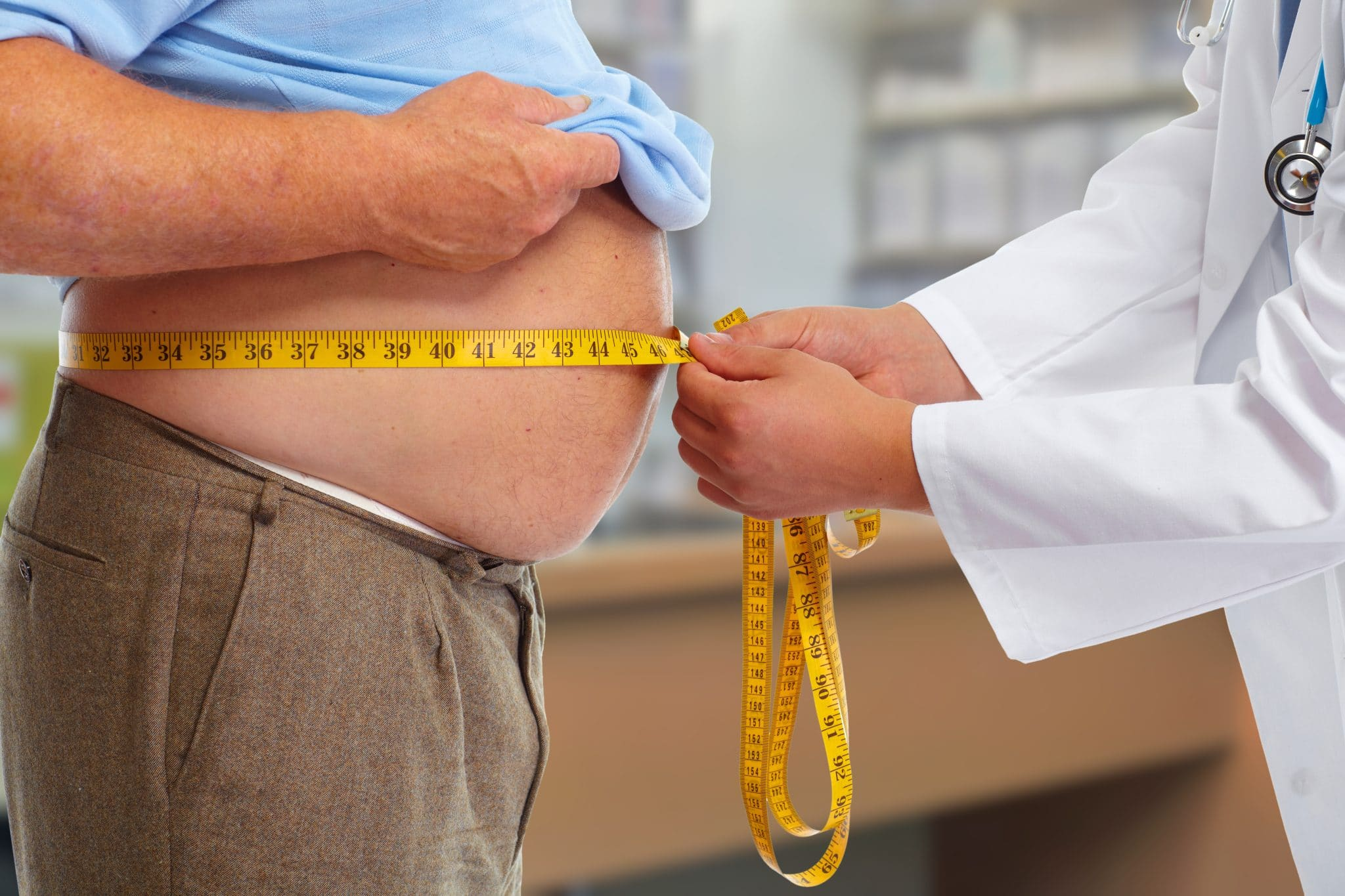 Doctor measuring obese man's stomach