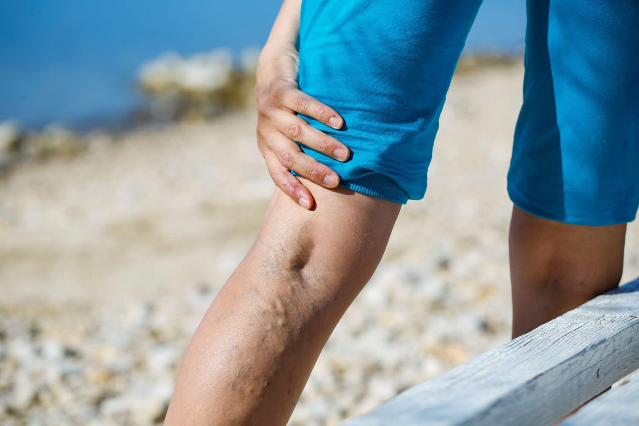 Painful varicose veins
